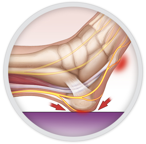 Clinical Information Preventing Heel Pressure Injuries Sage